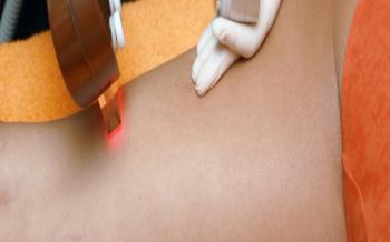 Como empezar con la depilación láser masculina