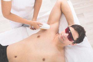 Resultado de imagen para depilación laser masculina