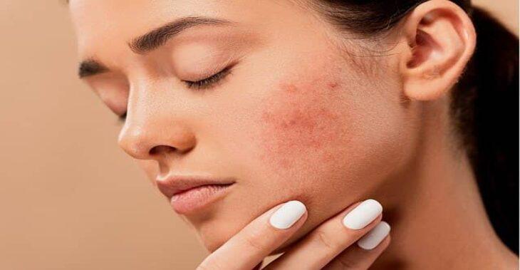 Nunca imaginarías el efecto de la contaminación sobre tu rostro