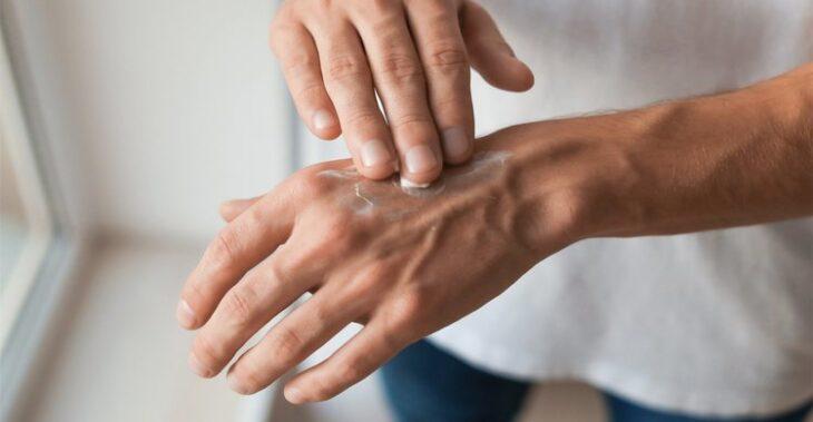 La salud de tus manos importa mucho más de lo que tú crees
