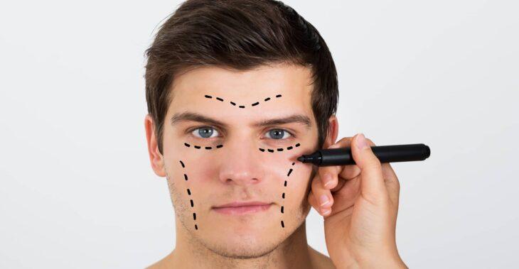 Cirugía cosmética para hombres