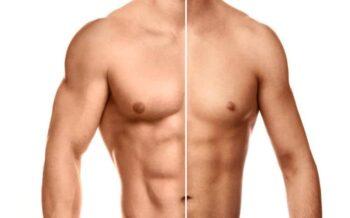 ¿Está considerando la revisión de mamas masculinas?