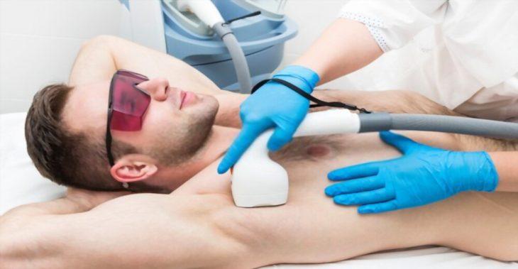 Lo que los hombres y la depilación láser